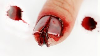 Video FX Series: I cut my finger and cracked my nail! MP3, 3GP, MP4, WEBM, AVI, FLV April 2018