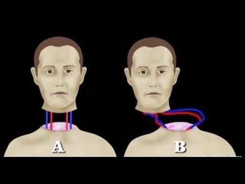 Сенсация: Пересадка головы