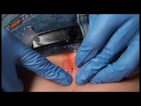 15 year old Sebaceous Cyst and Sac Removal on Spine with no Anesthetic part 2