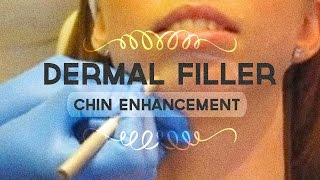 Video Non-surgical chin enhancement with dermal filler MP3, 3GP, MP4, WEBM, AVI, FLV Agustus 2018