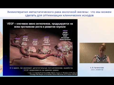 Химиотерапия метастатического рака молочной железы