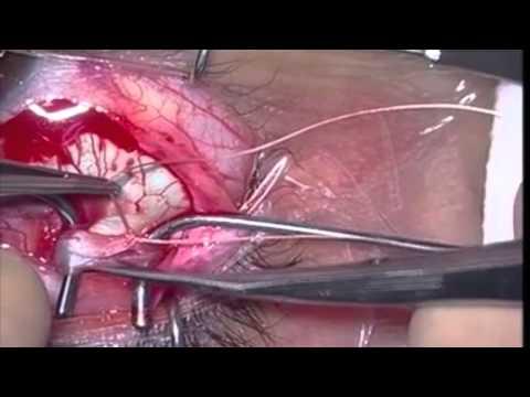 Paresia del cuarto par craneal videos videos for Cuarto par craneal