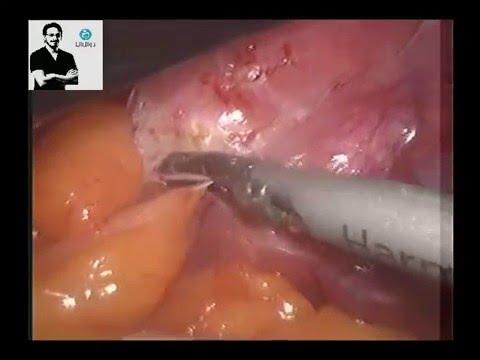 laparoscopy for severe pelvic adhesions of endometriosis . dr wael elbanna