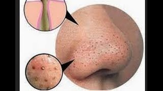 DIY BLACKHEAD REMOVAL - YouTube