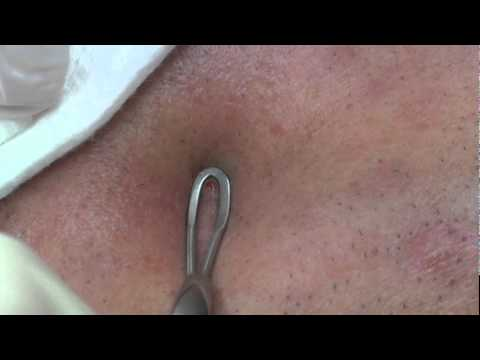 Professional Pimple Pop! (Part 2)