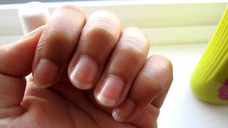 ❤ How To Grow Long Nails In Less Than 5 Days!! ❤