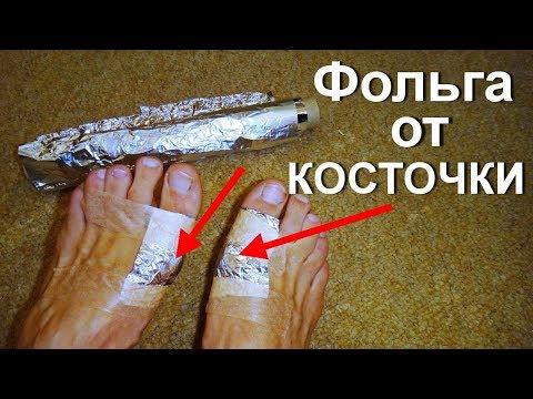 Лечение фольгой косточек на ногах. Как остановить рост шишек на пальце? Вальгусная деформация стопы (видео)