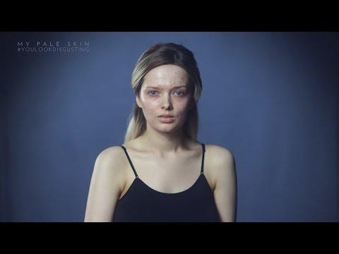 YOU LOOK DISGUSTING  People React To Her Bad Skin on social media