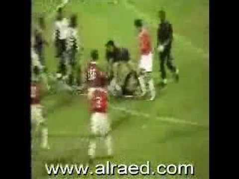 「首の太い神経が切れて即死したサッカー選手の体が動き続けてる動画」のイメージ