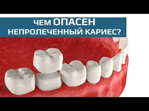 Восстановление жевательного зуба коронкой