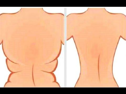 Derrite la grasa de la barriga, espalda y elimina la flacidez con esta poderosa receta