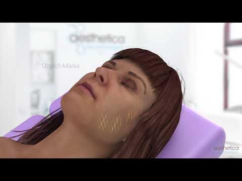 Plasma Plex Soft Surgery