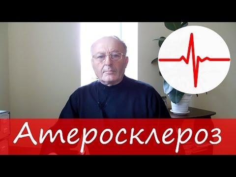 Атеросклероз сосудов: симптомы и лечение – Юзеф Криницкий