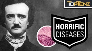 Video Top 10 Famous HISTORIC FIGURES Who Suffered Horrifying DISEASES MP3, 3GP, MP4, WEBM, AVI, FLV Desember 2018