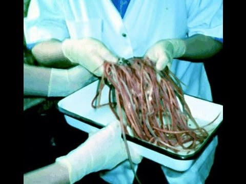 Removing intestinal worms & parasites from a bodybuilders colon re: