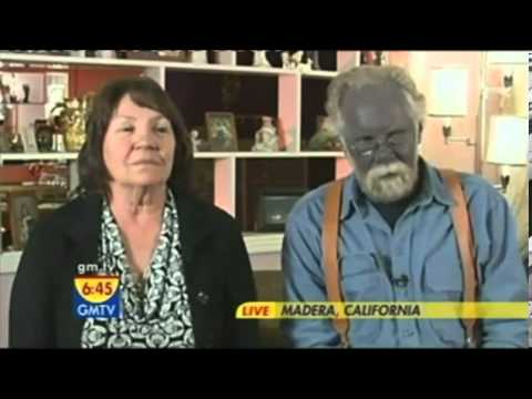 Paul Karason, Man who found Internet fame when his skin turned permanently blue dies.