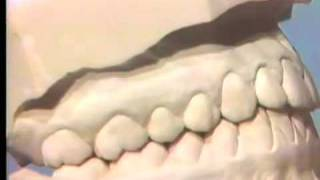Occlusal Examination Of Correctly Articulated Casts