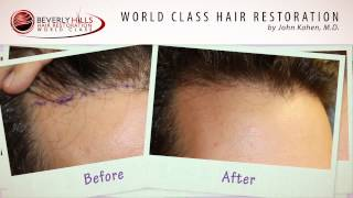 FUE Hair Restoration Procedure Natural Results Video- Beverly Hills, CA