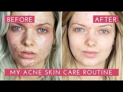 My Acne Skin Care Routine // How I Cleared My Acne // MyPaleSkin