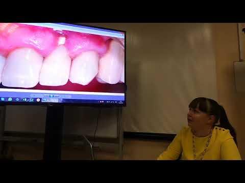 Хирургическое лечение рецессий десны в области зубов и имплантатов. Часть 27