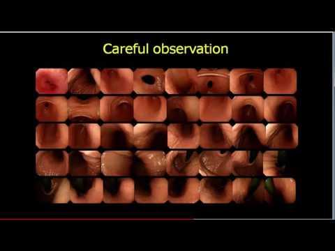 Как выявить ранний рак желудка? / How to detect early gastric cancer?