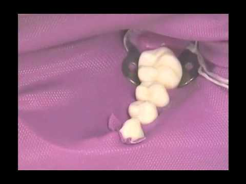 Procedure 36 4 Two Step Dental Dam Placement