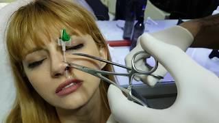 Video Burun piercing  deldirme uyuşturarak  acısız!! MP3, 3GP, MP4, WEBM, AVI, FLV Maret 2019