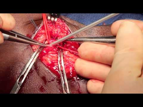 Brachial-basilic AV fistula creation,  first stage.mov