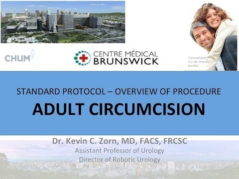 adult circumcision - Male circumcision is performed on an estimated one out of six male newborns worldwide. Over 60 percent of male newborns were circumcised in the United States...