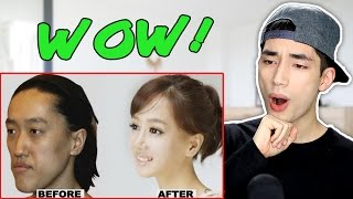 Video Korean Plastic Surgery Before and After Photos Reaction MP3, 3GP, MP4, WEBM, AVI, FLV Juli 2018