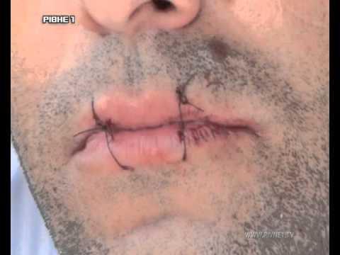 У Рівненському СІЗО іноземець зашив собі рот, бо протестує проти українського правосуддя [ВІДЕО]