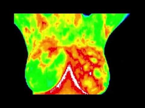 breast suffolk ny Thermography