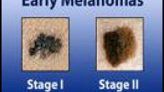 Melanoma - Treatment