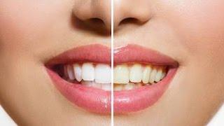 Essa é uma das técnicas usada pelas Gringas onde você deixa os dentes branquinho.
