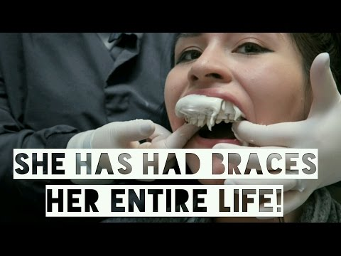 GETTING BRACES OFF AFTER 15 YEARS FULL EXPERIENCE!