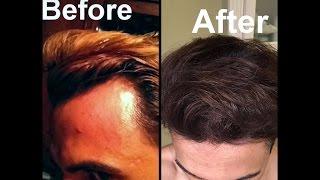 Video Grow Hair on Receding Hairline Naturally! (dermaroller and essential oils) MP3, 3GP, MP4, WEBM, AVI, FLV November 2018