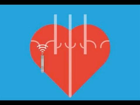 Abnormal Heart Rhythms (Arrhythmia)