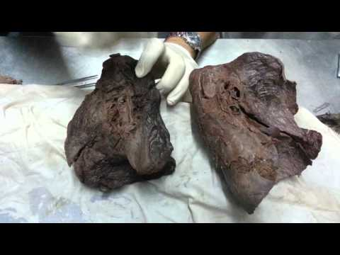 Dr.Ahmed Elzainy heart&lung  (practical)