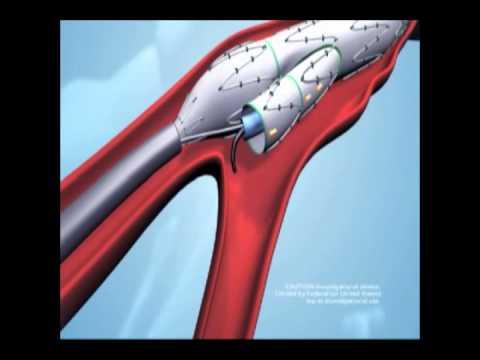 Fenestrated aortic endoluminal graft