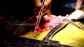 Kidney Transplant Operation in India Performed by Dr. Priyadarshi Ranjan