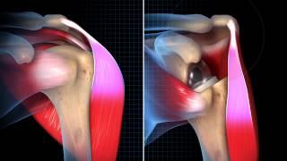 Exactech Reverse Shoulder Biomechanics Animation