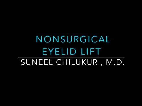 Eyelid Nonsurgical Lift with Exilis