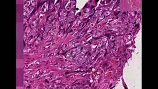 Histopathology Uterus--Choriocarcinoma