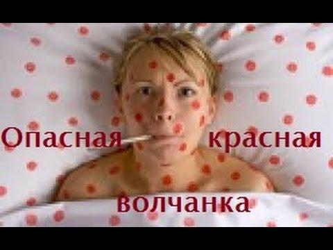 Опасная красная волчанка - DomaVideo.Ru