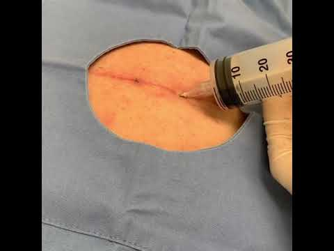 Using a needle to drain a fluid collection under the skin after surgery.