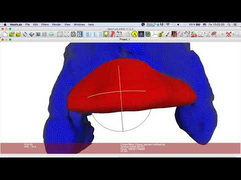 Создание высокоточной трех-мерной модели индивидуаль-ного блока. Часть 15