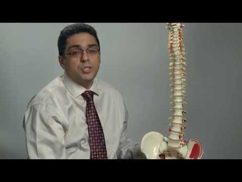 Degenerative changes of the spine | Ohio State Medical Center