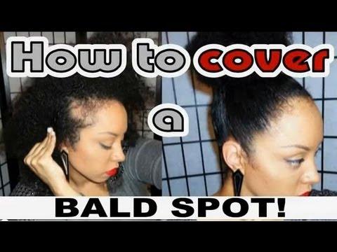 How to HIDE a BALD SPOT / My (NATURAL) Hair Secret