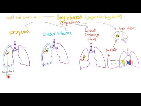 Lung Infection; Lung Abscess, Aspiration Syndromes, Systemic fungi