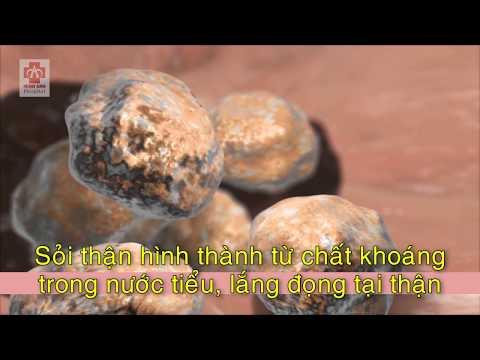 Sỏi thận_BVQT Minh Anh